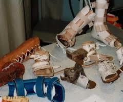 orthopedische hulpmiddelen-5