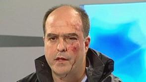 Een van de gewonde oppositieleden ©AP