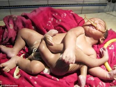 Hindoe baby met 8 ledematen